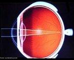 Na hipermetropia o globo ocular é mais curto que o normal e a imagem se forma depois da retina. A córnea não permite a convergência necessária para que o ponto focal se situe na retina, deste modo, esta imperfeição resulta numa visão defeituosa dos objetos que se encontram próximos do olho (dificuldade para enxergar de perto). Este defeito é compensado através da utilização de lentes convexas que permitem a convergência dos raios luminosos antes de chegarem ao olho, permitindo a criação do ponto focal na retina. <br /><br /> Palavras-chave: Ótica, visão, retina, córnea, globo, ocular, convergência.